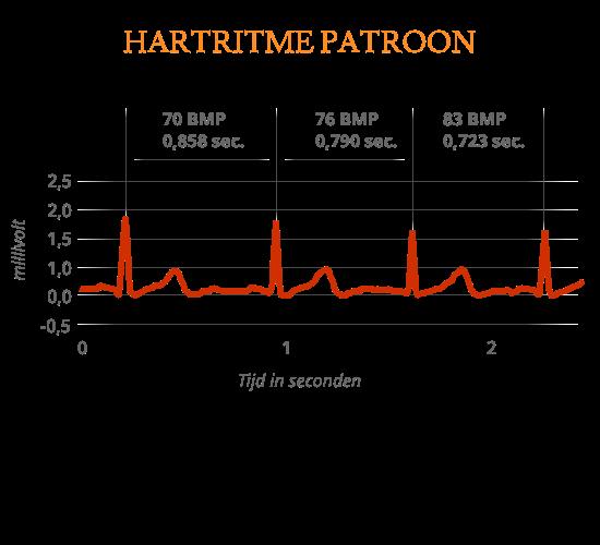 Grafiek van hart ritme patroon